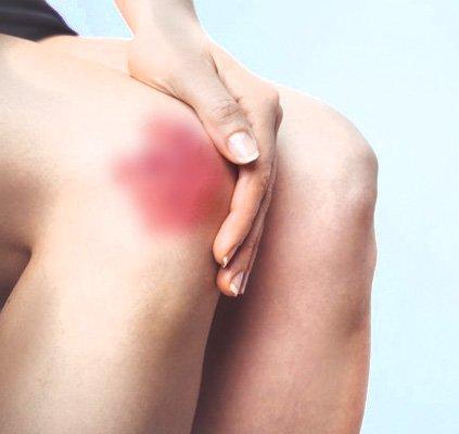 tratamento-ulceras-pressao